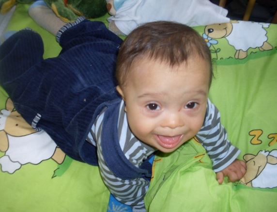 bebe-trisomie-21