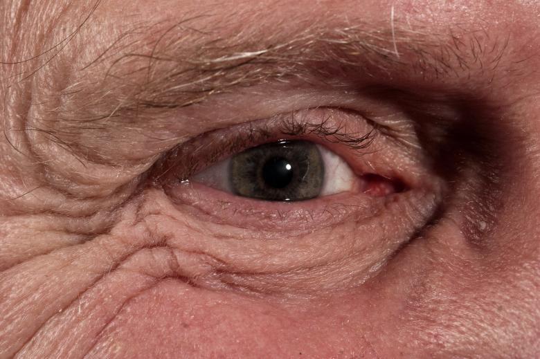oeil âgé